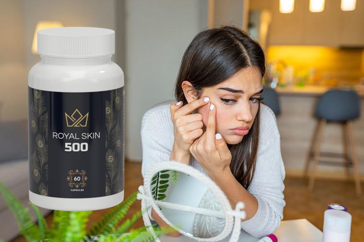 royal skin 500 avis